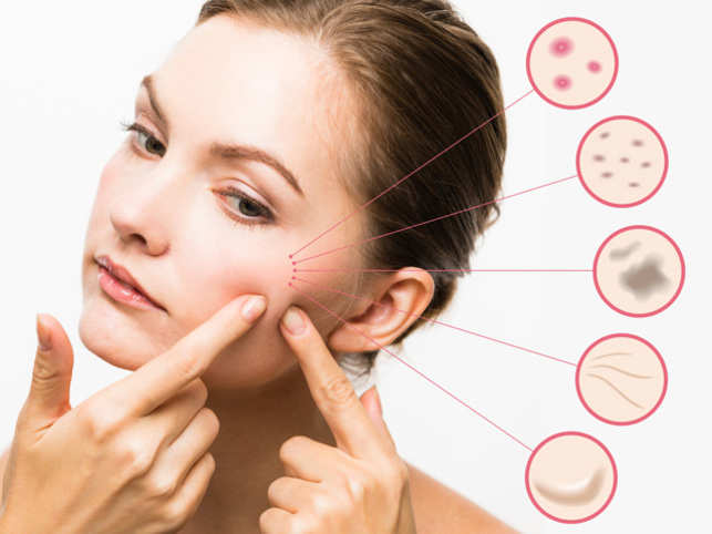 What Is Acne and What Causes It?